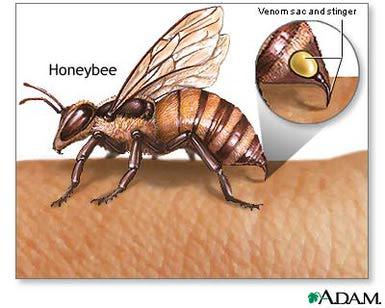 arı sokması